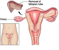 Salpingectomy: Involves removal of the fallopian tubes. May be unilateral or bilateral