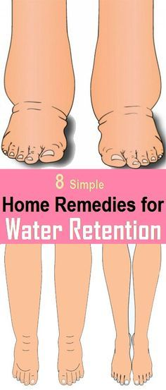Water Retention Remedies 8 Best Home Remedies To Reduce Water Retention – Holistic Family Tips transition to natural Foot Remedies, Health Remedies, Herbal Remedies, Fitness Workouts, Easy Workouts, Fitness Tips, Health And Beauty, Health And Wellness, Health Diet