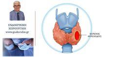Καρκίνος θυρεοειδούς – εκδηλώσεις και διάγνωση