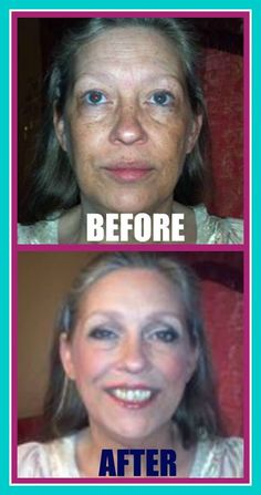 This beautiful woman used our Want it all Collection, which has the cream foundation it it. What a gorgeous transformation. Www.Youniqueproducts.com/hollyweiss