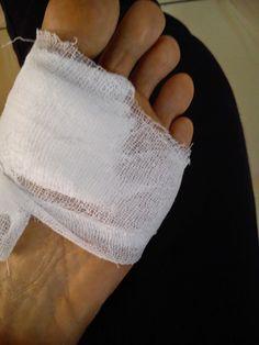 Gangren adalah istilah medis yang digunakan untuk menggambarkan kematian area tubuh. Hal itu terjadi ketika pasokan darah terputus pada bagian yang sakit sebagai akibat dari berbagai proses, seperti infeksi, pembuluh darah (yang berkaitan dengan pembuluh darah) penyakit, atau trauma. Gangren dapat melibatkan bagian tubuh, dan bagian yang paling umum termasuk jari kaki, jari-jari, kaki, dan tangan.