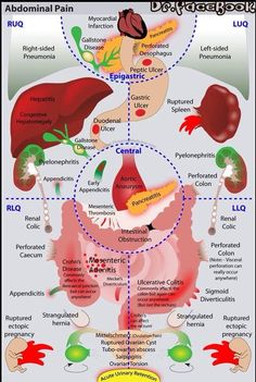 Abdominal pain areas and possible injuries