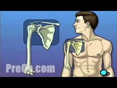 Shoulder Replacement Surgery PreOp® Patient Engagement and Education - YouTube