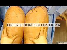 #liposuction #lipedema #plastic #surgery #youtube #repta #for #dr     Liposuction for Lipedema: Dr Repta Plastic Surgery - YouTube     Liposuction for Lipedema: Dr Repta Plastic Surgery - YouTube