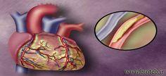 تصلب شرایین،علل،راههای پیشگیری،درمان http://bioteb.ir/9523