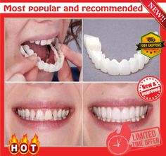 A special custom made mould works to disguise crooked, stained, missing and gapped teeth. chieve the smile of your dreams with aPerfect Smile Fake Tooth Cover from White Smile Dental. Veneers Teeth, Dental Veneers, Perfect Smile Teeth, Snap On Smile, Braces Cost, Stronger Teeth, Smile Dental, Teeth Whitening System, White Smile