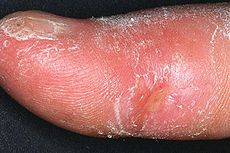 """Sclerodactyly is a localized thickening and tightness of the skin of the fingers or toes. Sclerodactyly is commonly accompanied by atrophy of the underlying soft tissues. The term """"sclerodactyly"""" is made up from the Greek """"skleros"""" meaning hard and """"daktylos"""" meaning a finger or toe – """"hard fingers or toes"""". It is sometimes associated with scleroderma and mixed connective tissue disease, auto-immune disorders. Sclerodactyly is a component of the CREST variant of scleroderma"""