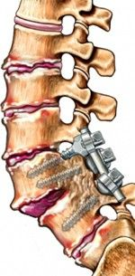 Spinal fusion, the doctor calls it. I call it getting screwed from behind! anatomy-my-spinal-woes Back Surgery, Spine Surgery, Scoliosis Surgery, Spinal Fusion Surgery, Surgery Humor, Spondylolisthesis, Spinal Decompression, Degenerative Disc Disease, Spine Health