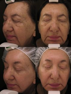 improvement in tone, texture and brown spots after one Obagi Blue Peel skin treatment.