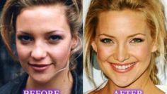 Kate Hudson Nose Job Before and After