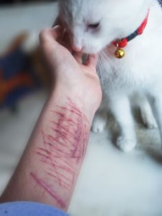 self harm scars/wounds