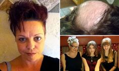 Mother of three left bald after spending 30 YEARS pulling out hair #trichotillomania