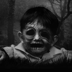empty eye socket boy - black and white photo #R0UGH PIN MIX