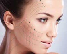 Diy Beauty Treatments, Skin Treatments, Frauen Mittleren Alters, Thread Lift, Aesthetic Clinic, Nose Surgery, Skin Clinic, Cosmetic Procedures, Prevent Wrinkles