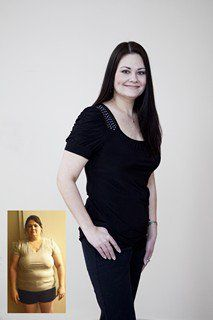 28 Best Befor N After Gastric Sleeve Images Bariatric Surgery