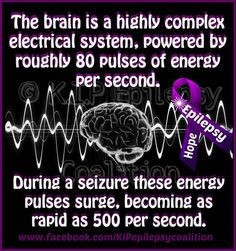 The brain is highly complex electrical system, powered by roughly 80 pulses of energy per second. During a seizure these energy pulses surge, becoming as rapid as 500 per second.