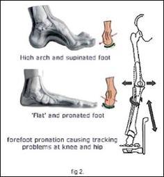 pronation vs supination
