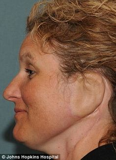Doctors grow a new ear on a woman's arm and attached it to her head (WARNING: graphic) #johnhopkins #sherriewalter