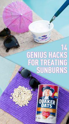 These genius tips for treating sunburn will change summer FOREVER.