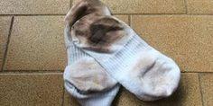 Desencardir meias é uma arte fácil. Veja aqui! 714125