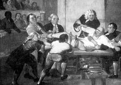 Amputation in the Operating Room of St. Thomas Hospital, 1775 Visible on the left leg of the patient is a screw tourniquet.