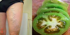 Jak vyléčit křečové žíly bez punčoch či operace, jen s pomocí rajčat