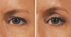 With this natural mask, you can lift your eyes without the hassle of intervention. Beauty Make Up, Beauty Care, Beauty Hacks, Hair Beauty, Beauty Tips, Botox Lips, Ugly Hair, Botox Alternative, How To Grow Eyebrows