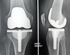 chirurgie du genou   Prothèse Totale Du Genou Pictures to pin on Pinterest