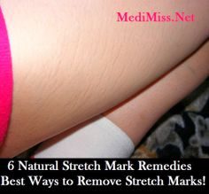 Brakely.Com: 6 Natural Stretch Mark Remedies - Best Ways to Remove Stretch Marks!