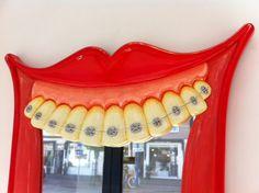 Close up on the braces...