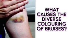 😖 | What causes the diverse colouring of bruises?