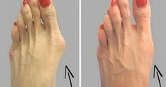 The bunions are salt deposits, andangina, gout, influenza, bad metabolism, rheumatic infections, poor diet and wearing uncomfortable shoe...