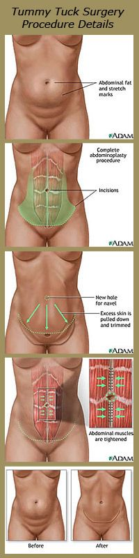 Tummy Tuck Surgery Los Angeles, Abdominoplasty Information Beverly Hills