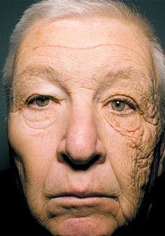 28年間トラックを運転して、顔の半分だけ日光に照らされた結果