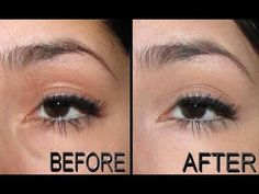 Concealing Under Eye Puffiness/Bags Below the Eyes