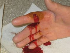 For those who have issues with injuries that keep bleeding, here is how to stop bleeding in 10 seconds with this one trick. Some people fear blood, which is called hemophobia. If this happens to be the case for you, then you want to stop a cut from bleeding as soon as possible. Understand How […]