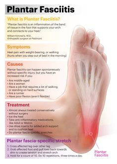 Stretching and strengthening exercises will help reduce plantar fasciitis. Heel pain can be caused by stress placed on the plantar fascia ligament when it is Facitis Plantar, What Is Plantar Fasciitis, Plantar Fasciitis Exercises, Plantar Fasciitis Treatment, Plantar Fasciitis Massage, Health And Beauty Tips, Health And Wellness, Health Tips, Health Care