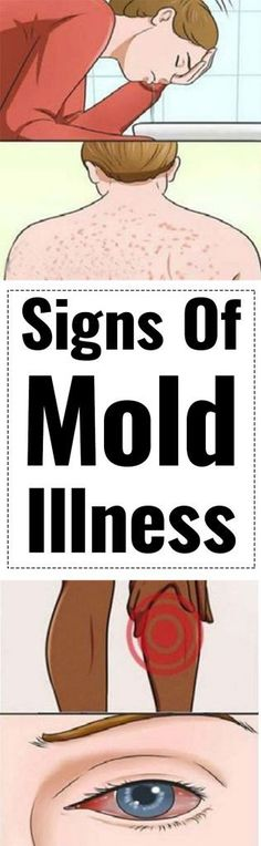 17 Signs Which Indicate Mold Illness And How To Treat It!