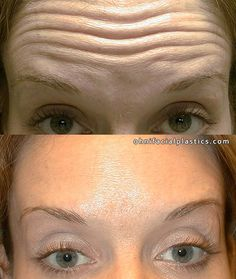 Regenerate sagging face skin and beat wrinkles with face training exercises and acupressure rubbing solutions. The combination is a powerful way to smooth out face wrinkles and raise loose facial skin for a more youthful look. Facial Yoga Exercises, Sagging Face, Natural Face Lift, Face Yoga, Face Wrinkles, Cosmetic Procedures, Face Skin, Toning Workouts, Fitness Workouts