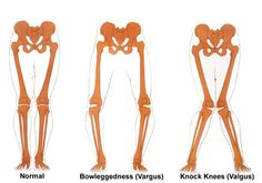 ideal alignment, postural bowlegs and postural knock knees - Google Search