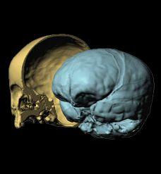 http://neuroantropologia.wordpress.com/2013/03/10/neurospot-pandora/