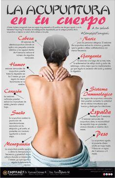 La Acupuntura en tu Cuerpo - A tu salud con #ConsejosTanyari  ¿Quién hubiera imaginado que una aguja muy pequeña o 12 podrían ser de gran ayuda  a su tu bienestar? Aquí hay 10 maneras de investigaciones respaldados por la antigua práctica de la acupuntura a mejorar su salud, de la cabeza a los pies.