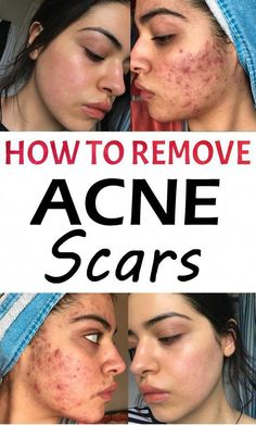 Treating acne and its stubborn scar is not an easy task; However, we all are pretty much aware that most medicines for acne scar removal are available at local medicine shops. Acne Scar Removal Treatment, Scar Removal Cream, Natural Acne Treatment, Cystic Acne Treatment, Acne Scar Cream, Acne Spots, Remove Acne, Remove Pimple Scars, Natural Treatments