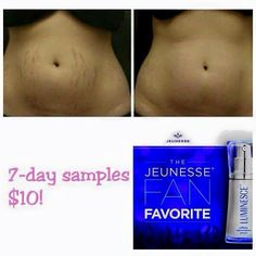 Special sale New You, Stretch Marks, Day