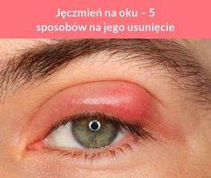 Jęczmień na oku – 5 sposobów na jego usunięcie