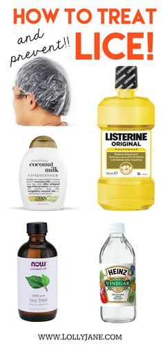 How to treat lice!! How to prevent lice! You may have all of these household items laying around your home. Safeguard yourself and kids before they invade! How to treat and prevent lice!