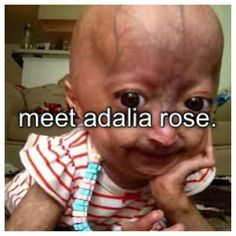 I've always wanted to meet Adalia Rose she is such an inspiration! One of my heros! <3
