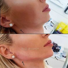 JAWLINE CONTOURING Hello new, sharp and chiseled jawline! This patient flew in from Romania with her friend and both were looking to… is part of Facial contouring - Cheek Fillers, Botox Fillers, Dermal Fillers, Chin Filler, Hyaluron Filler, Chiseled Jawline, Jaw Line, Botox Before And After, Aesthetic Dermatology