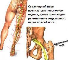 Trattamento del nervo sciatico.  11 ricette della medicina tradizionale