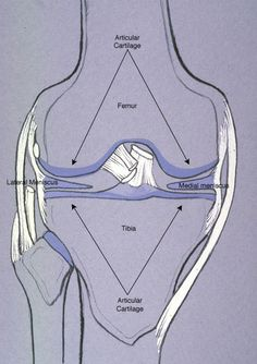 Torn Meniscus - The menisci are pads between the femur and the tibia informative Acl Surgery Recovery, Acl Recovery, Torn Meniscus Symptoms, Human Anatomy Picture, Anatomy Images, Knee Replacement Surgery, Musculoskeletal System, Medical Anatomy, Sports Medicine